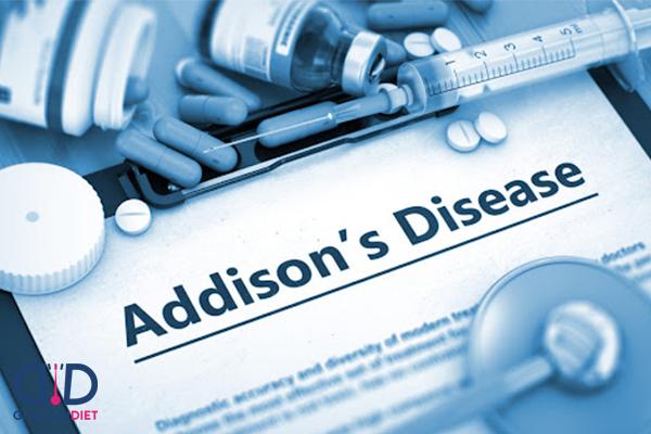 درمان بیماری آدیسون