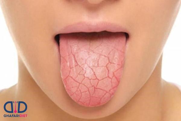آیا سندروم شوگرن خطرناک است