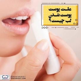❌پوست لب در مقایسه با پوست صورت لطیف است. خشک شدن پوست لب ها می تواند به علت خشکی هوا در زمستان باشد که در ظاهر لب تاثیر می گذارد و شکل زشتی به آنها می دهد. برخی از افراد در مقابل خشکی پوست لب نمی توانند مقاومت کنند و ان را می کنند که این امر به خونریزی می انجامد. . ?️عوامل موثر در پوسته پوسته شدن لب ها . ۱.آب و هوای خشن . ۲.واکنش به محصولات زیبایی . ۳.مصرف بیش از حد ویتامین A . ۴.کم شدن آب بدن . ۵.کمبود مواد مغذی . ۶.کمبود ویتامین B2 . ?️راه های درمان پوسته پوسته شدن لب چیست؟ ۱.از پماد های چرب کننده استفاده کنید . ۲.لب های خود را با زبانتان خیس نکنید . ۳.مواد غذایی تحریک کننده نخورید مثل: فلفل قرمز، خردل، انواع سس و آب پرتقال . ۴.زدن ماسکعسلو وازلین . ۵.روغن نارگیل . ۶.نوشیدن آب کافی . ۷.گذاشتن خیار روی لب ها . ۸. مصرف ویتامین سی . _______________________________________ ?لطفا نام و نام خانوادگی خود را به شماره 30005905 پیامک کنید تا در قرعه کشی ماهانه شرکت داده شوید.  @ghafaridiet  ______________________________________ ❌لطفا بدون ذکر منبع از پست ها استفاده نشود❌ . #گیاه #کاهش_وزن #افزایش_وزن #رژیم_چاقی #رژیمی #رژیم_لاغری #رژیم #چاقی #لاغری #تناسب_اندام #غذای_سالم #غفاری_دایتی #غفاری_دایت #فروکتوز #سالاد_رژیمی #گیاهخواری #وازلین #پوست #ویتامین #لب  #دایت #تغذیه_مناسب  #ghafaridiet #diet #healthyfood #healthy #healthylifestyle #fat #drghafari