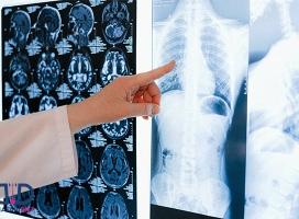 علائم و درمان فیبروز ریه که باید بدانید!