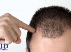 راهکارهای موثر برای جلوگیری از ریزش مو !