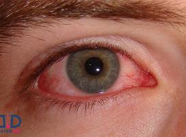 از علائم سندروم شوگرن و درمان آن چه می دانید؟!