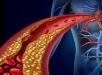 پاکسازی عروق خونی با استفاده از مواد غذایی سالم