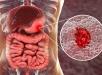 رژیم غذایی مناسب جهت درمان زخم معده