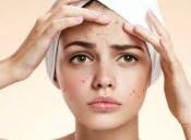 درمان جوش صورت با رژیم غذایی