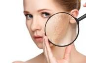 خشکی پوست و درمان آن