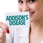 بیماری آدیسون چیست و چگونه درمان می شود؟!